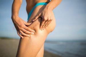 cellulitis-verminderen-benen-buik