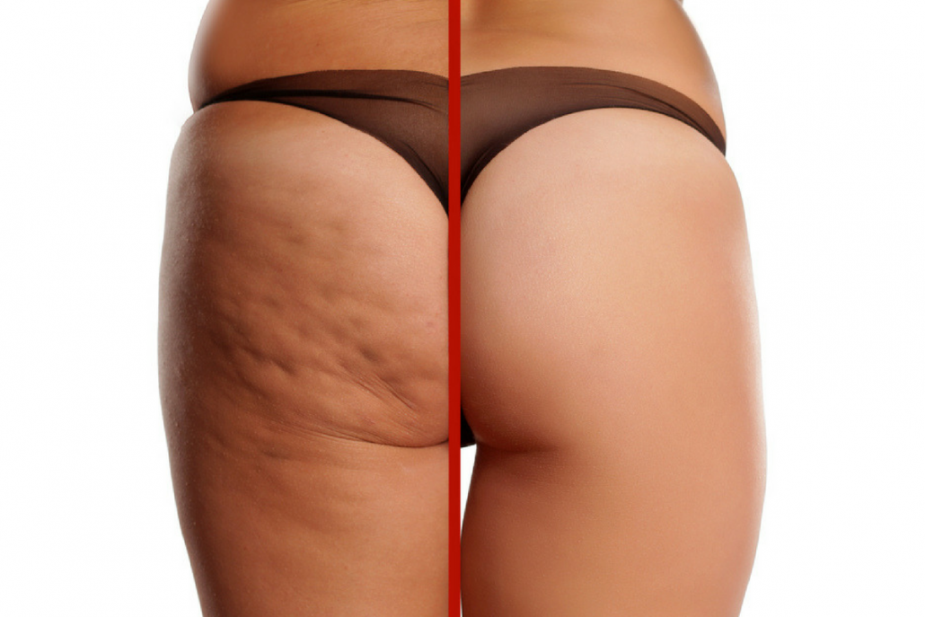 voor-na-foto-vrouw-met-cellulite